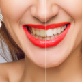 beacon-dentalcare-teeth-whitening