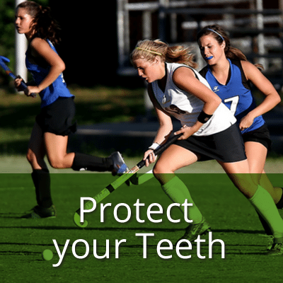 protect-your-teeth-mouth-guards