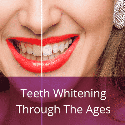 Teeth whitening throughout the ages